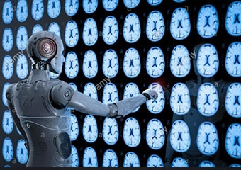 Yapay zeka, göğüs röntgeninden hastalık teşhisine yardım ediyor